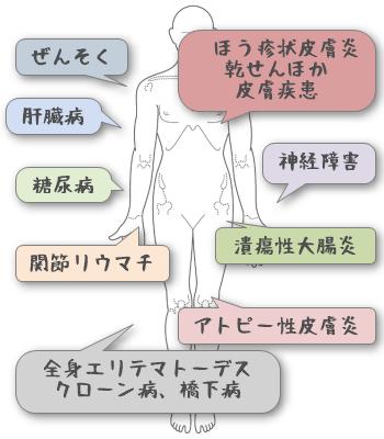 グルテンアレルギーの症状